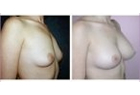 Breast Fat Transfer Case Study